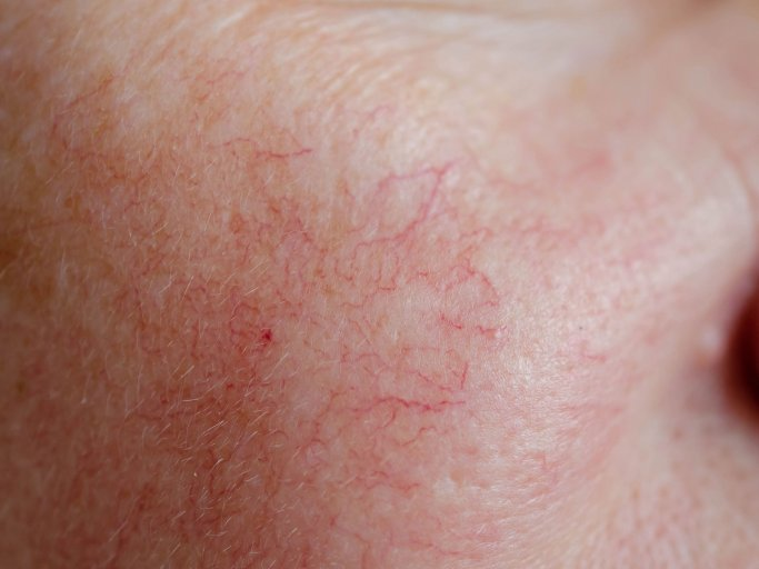 Bauch rücken rote flecken auf und Rote Flecken