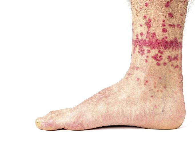 Mückenstich oder flohbiss